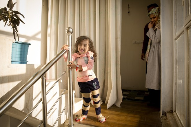 Zahra stands at the staircase with her splints on. Though her body is deteriorating, cognitively Zahra shines, her parents say.